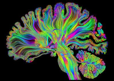 Le cerveau et ses mystères. Le sport rend-il intelligent ?
